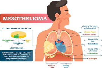 Causes and symptoms of mesothelioma cancer